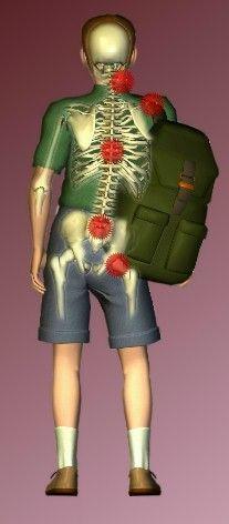 coloana vertebrala deformata, ghiozdan foarte greu